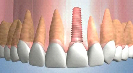 Dental implants are made from titanium that is coated with a special coating that encourages the bone to grow around it.
