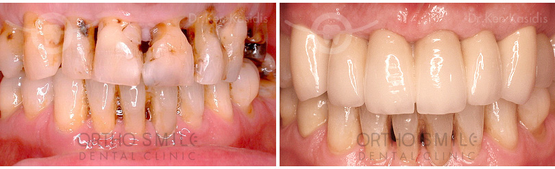 Replacing unstable or infected teeth