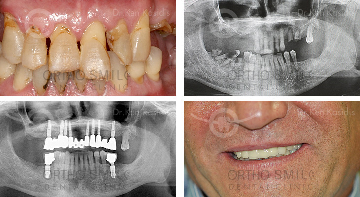 Full Mouth Rehabilitation with Dental Implants