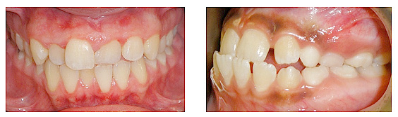 Periodontal problems including gum disease and bone loss.