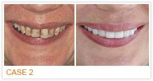 Ortho Smile Dental Clinic ทำฟัน พัทยา จัดฟัน พัทยา ชลบุรี