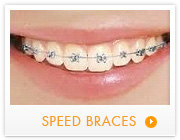 speed braces